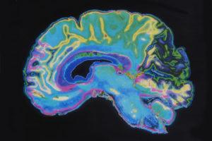 meditation brain research